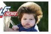 Por que alguns bebês nascem mais cabeludos?